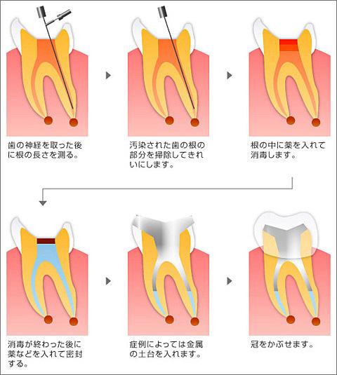 神経 歯 抜く の 神経を抜いた歯何本ある?